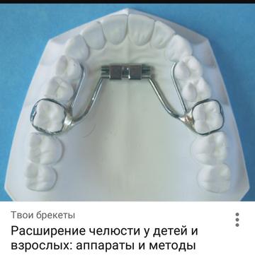 http://sg.uploads.ru/t/SdMh4.png